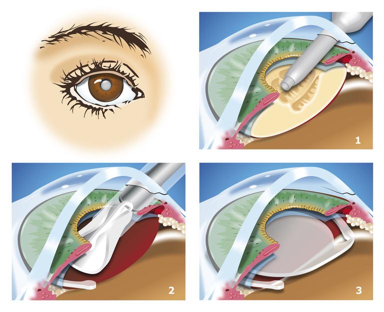 Linsenimplantation - OP-Schritte