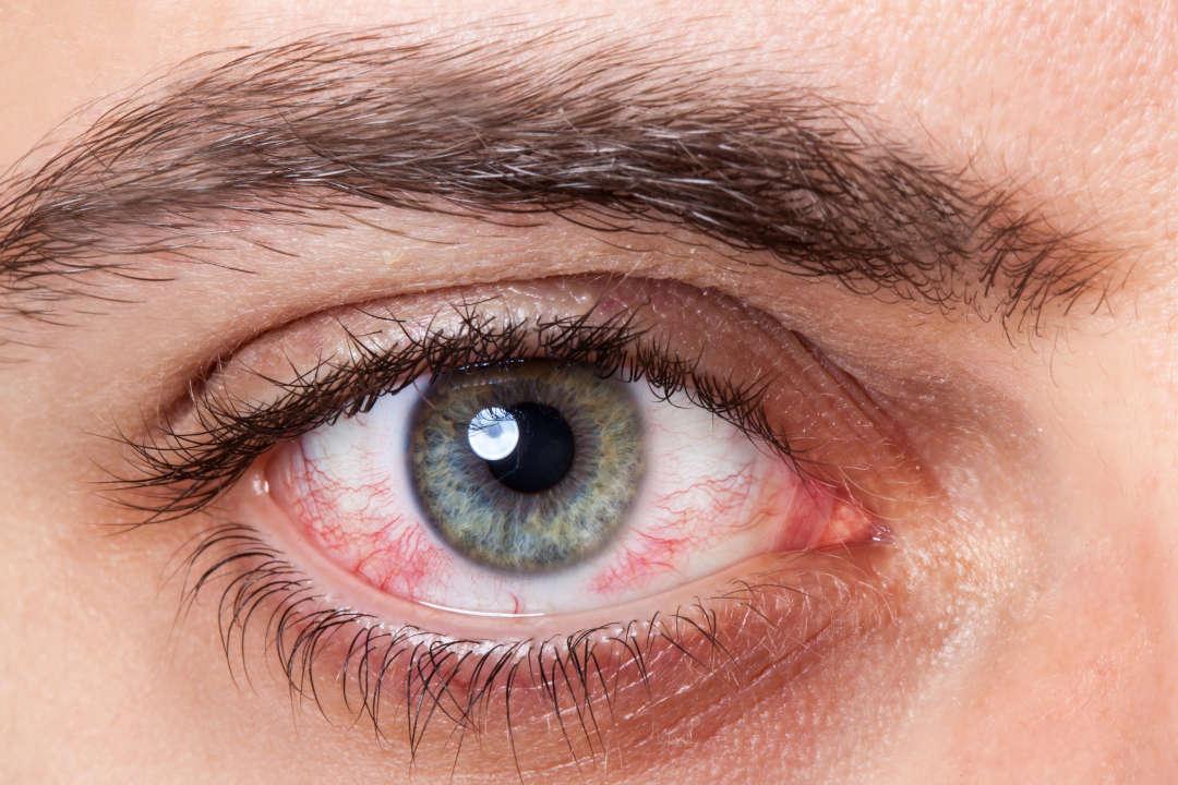 Augenlasern Entzündung